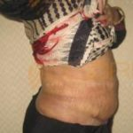Fat Suction Without Surgery in Before After Images Pune