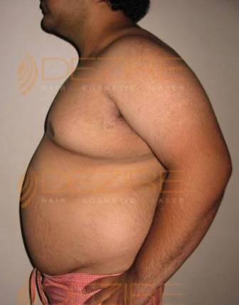 How fast can you lose weight on a high fiber diet image 3